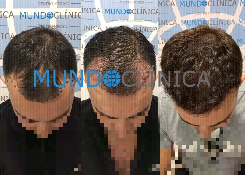 implante pelo antes y despues
