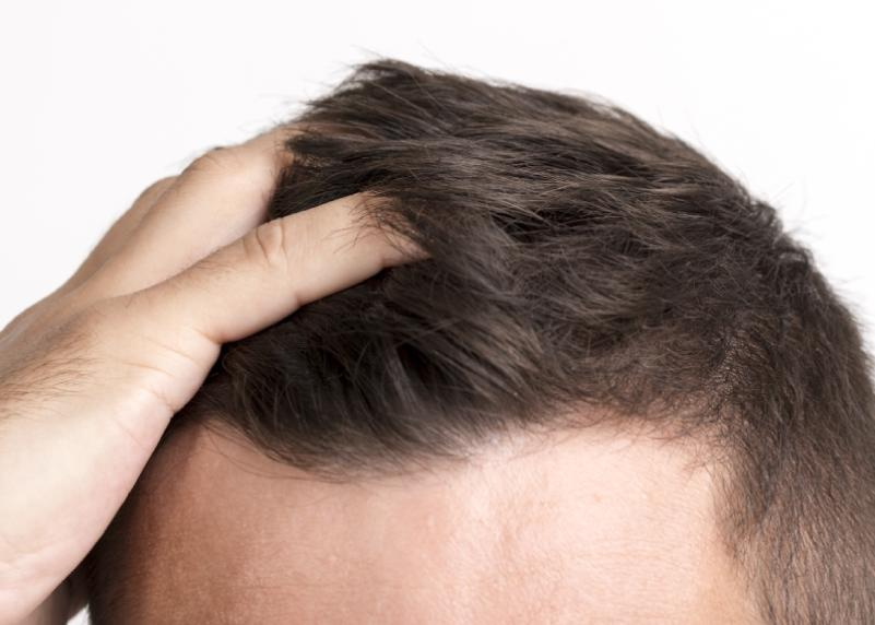 Alopecia síntomas y causas