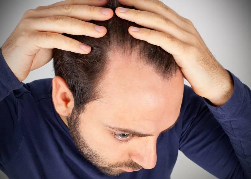 que es alopecia androgenica