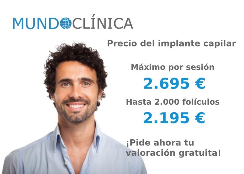 precio implante capilar