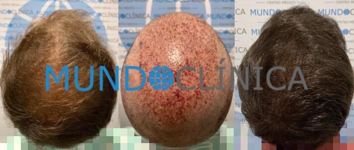 trasplante pelo antes y después