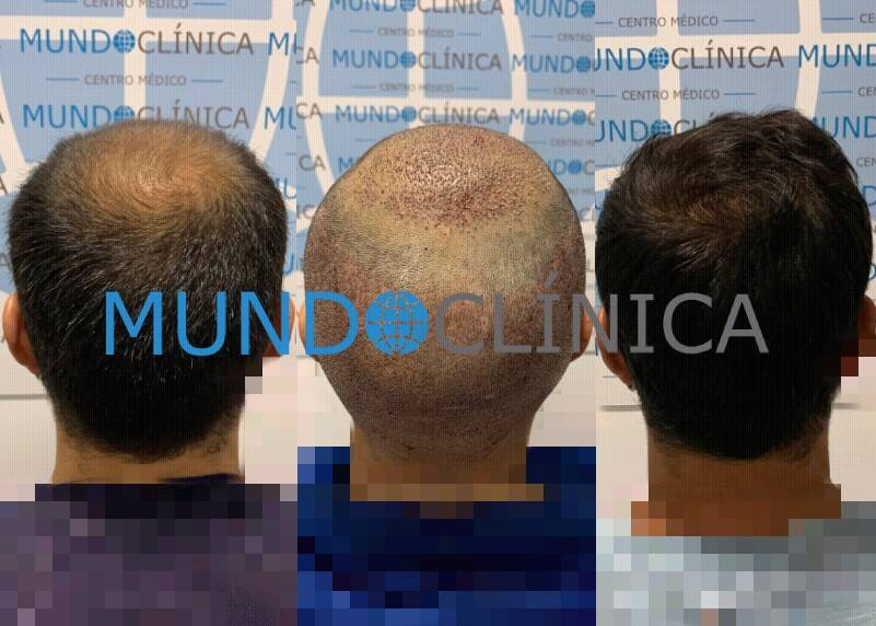 implante pelo antes después