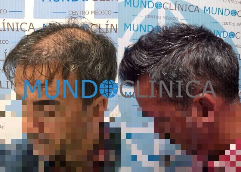 implante pelo antes y después